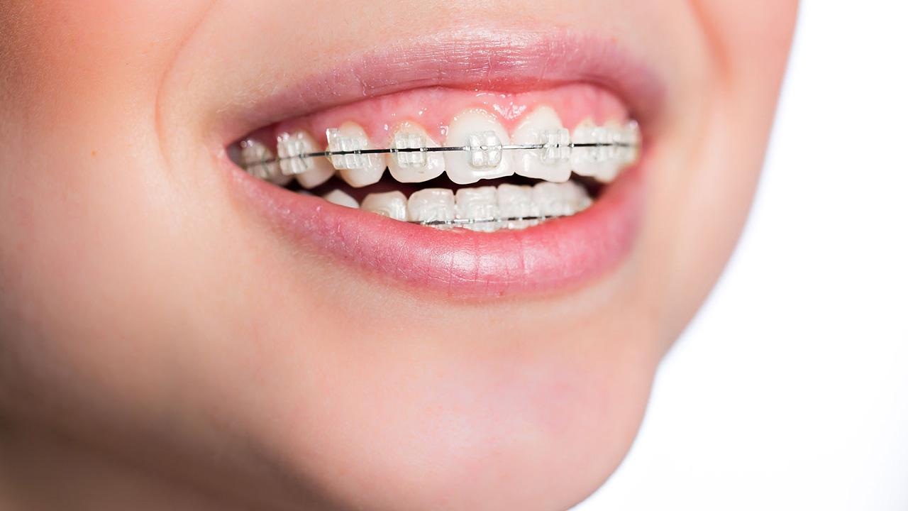 services - braces
