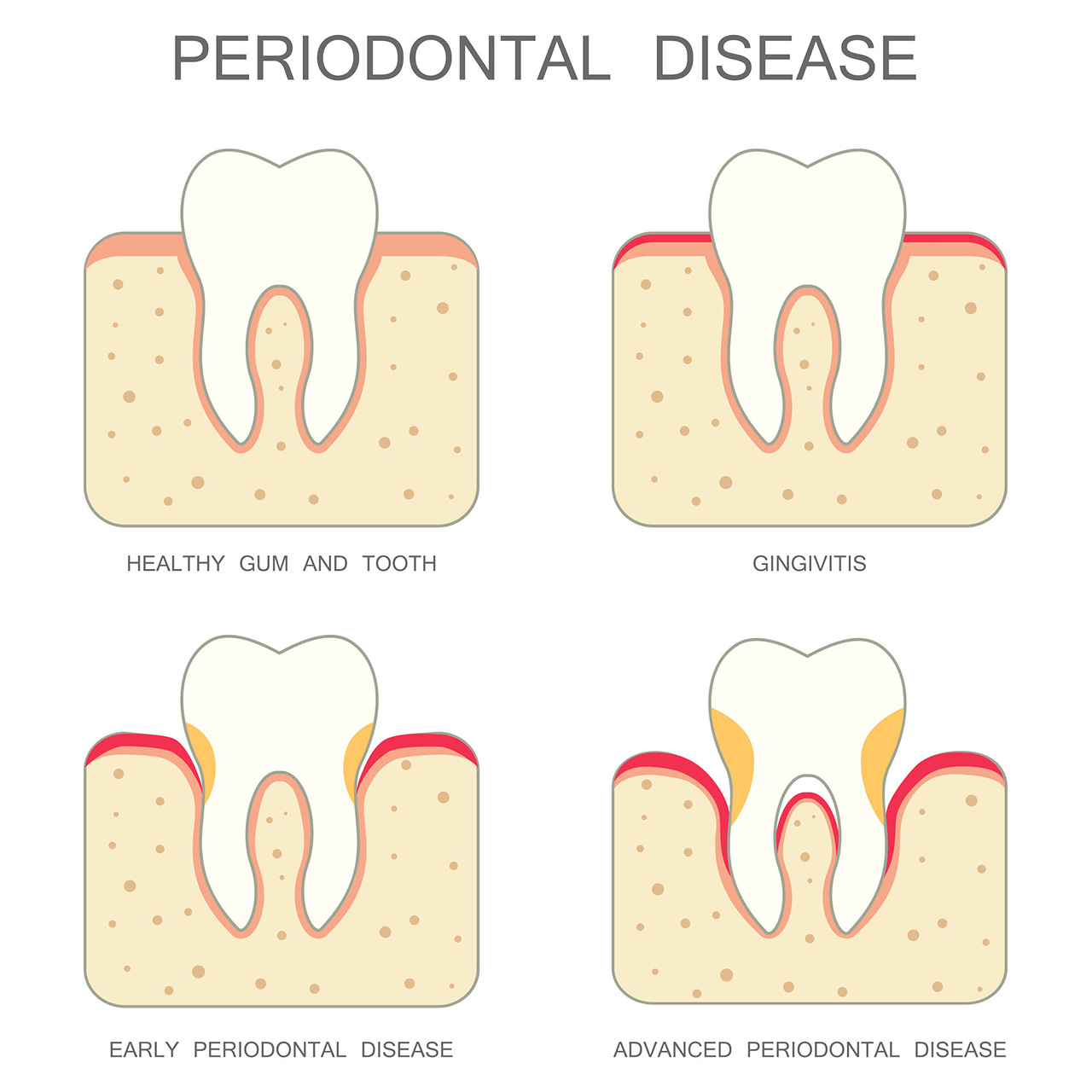 services - gum disease