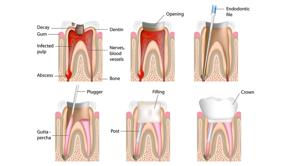 services - root canal treatment