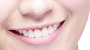 services - teeth whitening