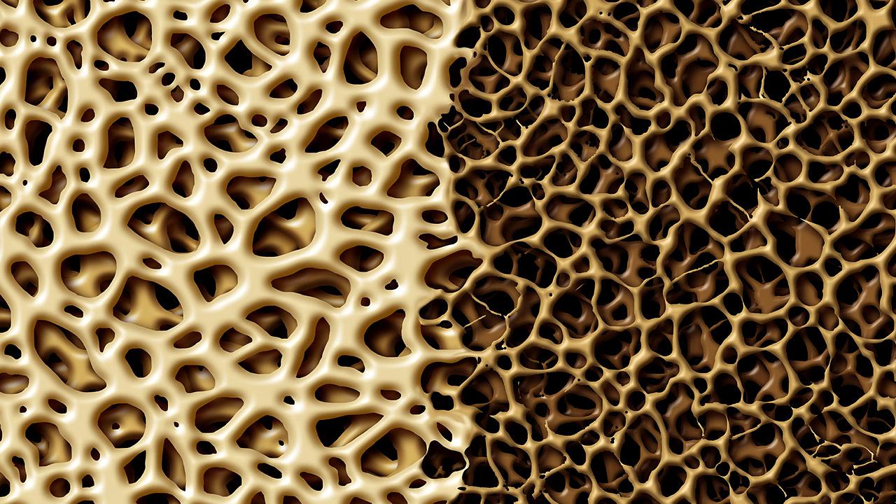 services - bone grafting